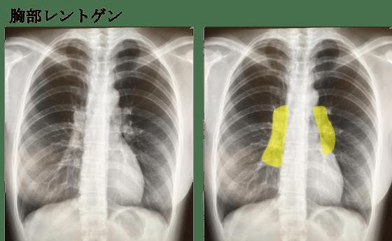 sarcoidosis X ray BHL