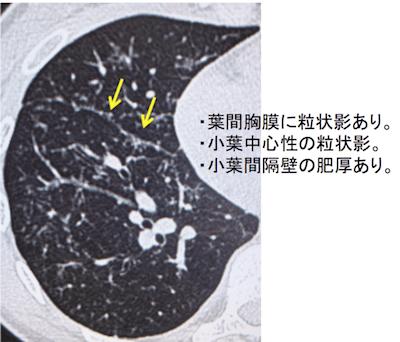 sarcoidosis1