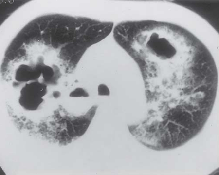 Semi-invasive aspergillosis