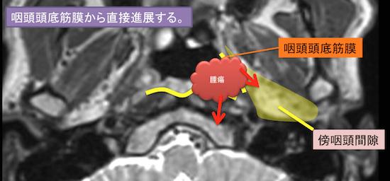 epipharyngeal carcinoma4