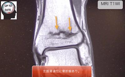 fatigue fracture2