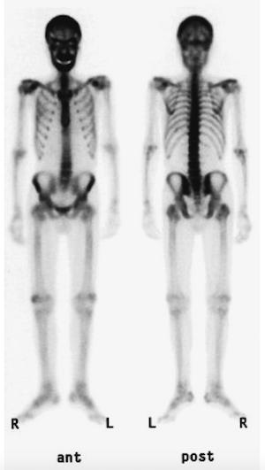 hyperparathyroid