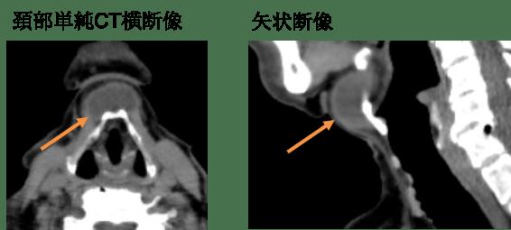 甲状舌管嚢胞(正中頸嚢胞)のCT画像