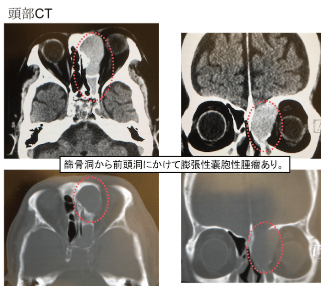 mucocele CT findings