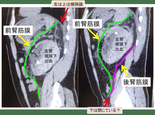 腎周囲腔のCT画像矢状断像