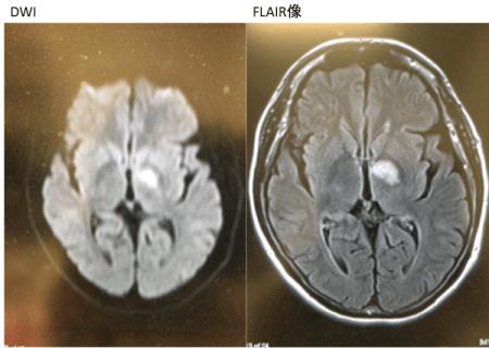 strategic infarct dementia