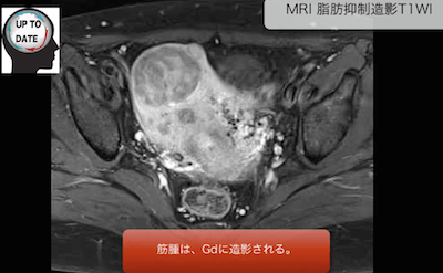 uterine myoma3