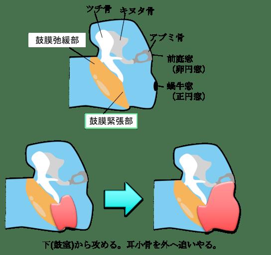 Cholesteatoma figure2