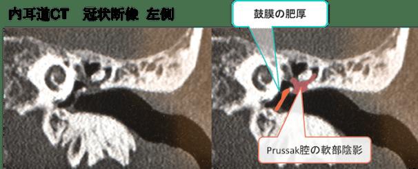 cholesteatoma CT findings2