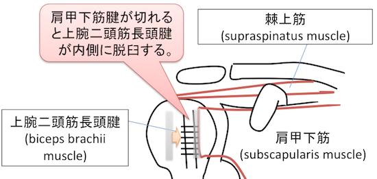 hidden lesion2