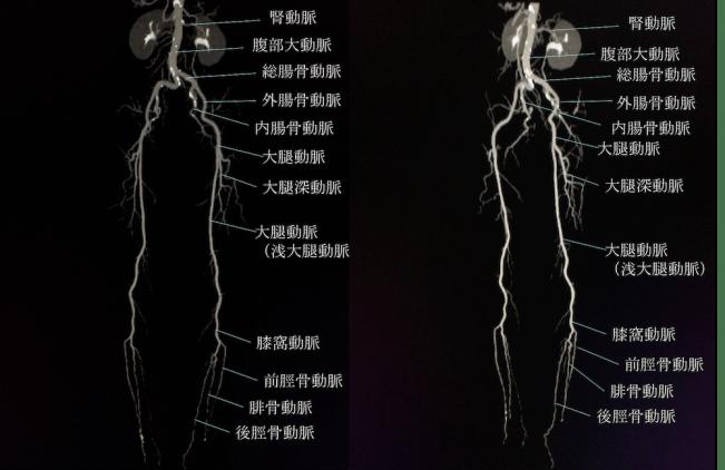 下肢CTAの動脈の解剖