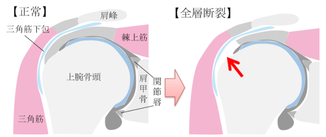 rotator cuff tear figure1