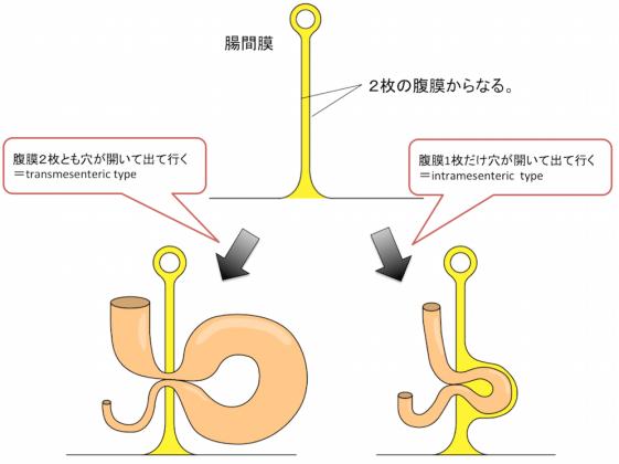 intramesenteric typeとtransmesenteric type