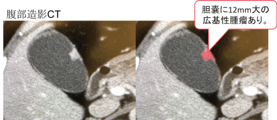 CT findings of gallbladder cancer