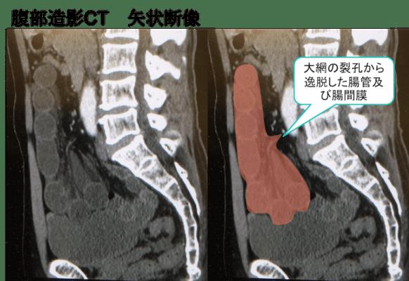 Omental hiatus hernia CT findings2