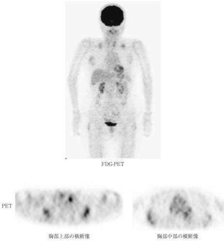 elastofibroma FDG PET
