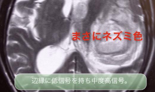 hemorrhagemri1