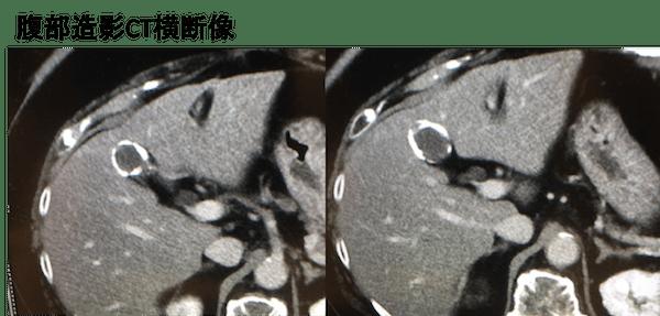 porcelain gallbladder CT findings