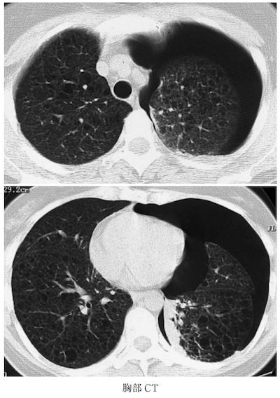 pulmonary lymphangioleiomyomatosis