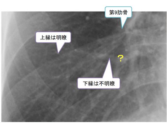 normal anatomy of chest Xray4