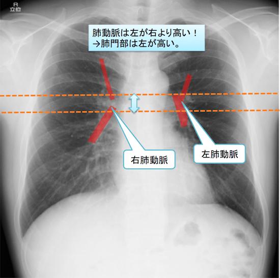 normal anatomy of chest Xray6