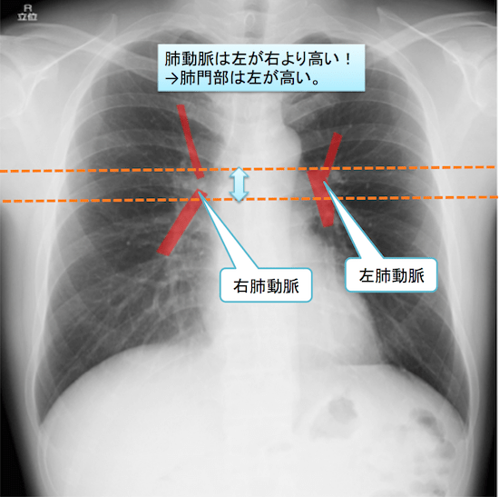 normal anatomy of chest Xray6