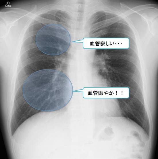 normal anatomy of chest Xray8