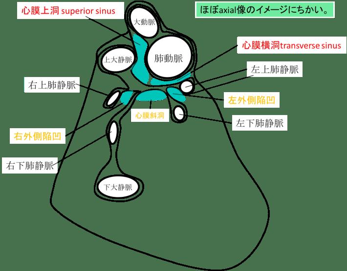 pericardial recess figure