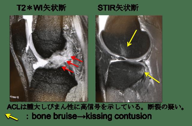 ACL injury mri findings