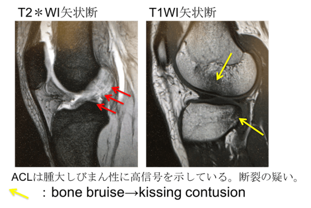 anterior cruciate ligament tear mri findings