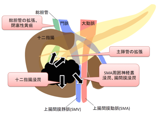 pancreatichead2