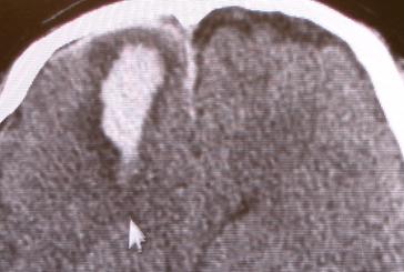 acute epidural hematoma1