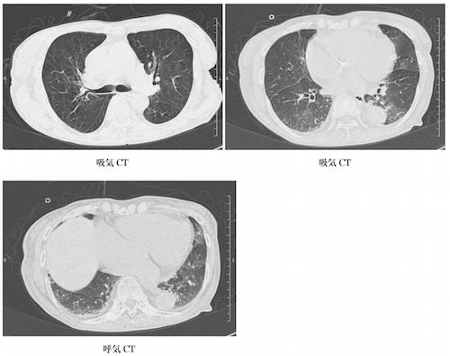 chronic pulmonary embolism