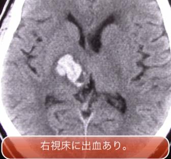 intracranial1