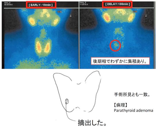 parathyroid2