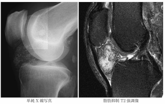 synovial osteochondromatosis