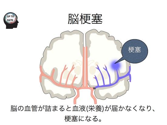 脳血管障害シリーズ①脳卒中とは?.005