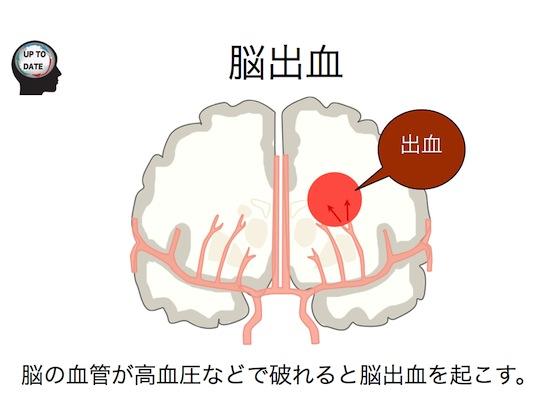 脳血管障害シリーズ①脳卒中とは?.006