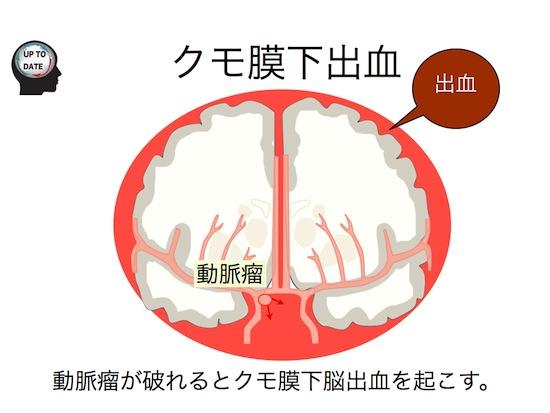 脳血管障害シリーズ①脳卒中とは?.007