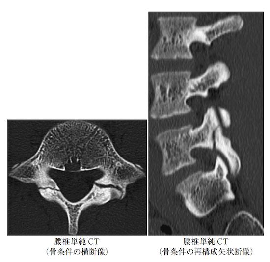 Lumbar spine separating disease