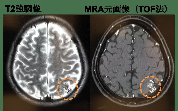 脳動静脈奇形のMRI画像