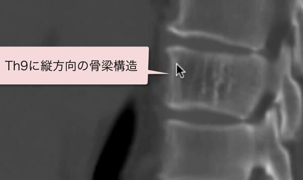 脊椎血管腫のCT画像vertebral hemangioma