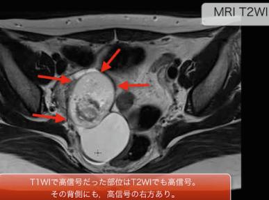 dermoidcyst1