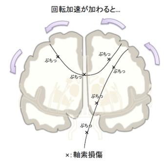 diffuse axonal injury1