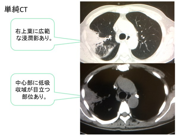 lung-abscess-ct-findings-001