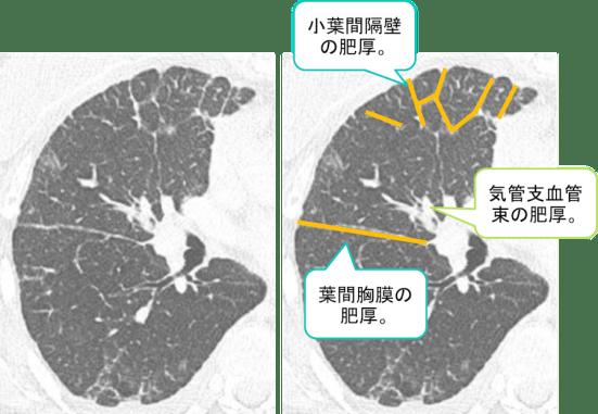 carcinomatous lymphangiosis CT findings3