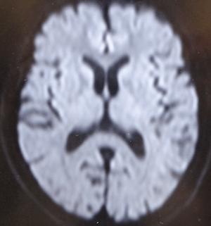 diffusionofbrain