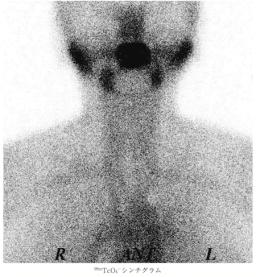 silent thyroiditis
