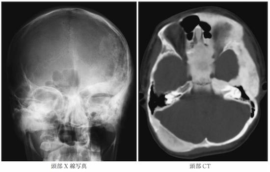 Fibrous dysplasia1