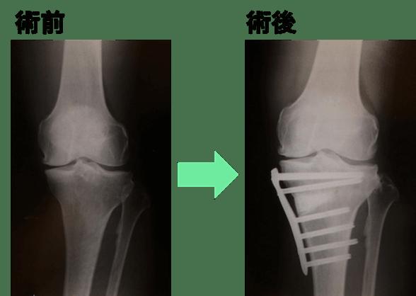 高位脛骨骨切り術(High Tibial Osteotomy : HTO)のレントゲン画像